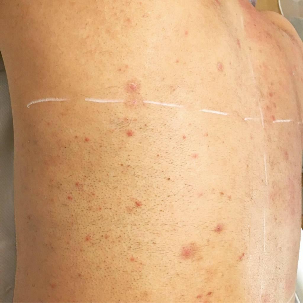 Rückenhaare vor der Laserbehandlung