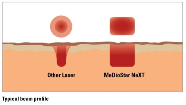 Mediostar Next von Asclepion im Vergleich mit herkömmlichen Lasergeräten